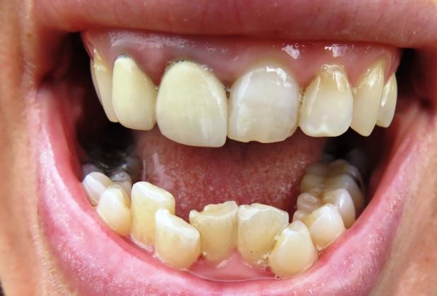 dating someone bad teeth